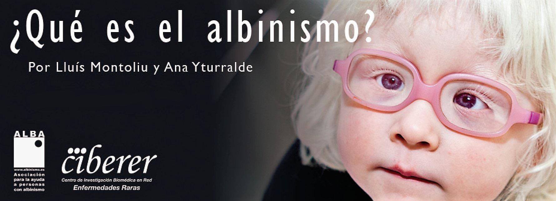 80a0e87beb El día a día con una persona albina